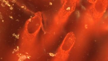 bacteriaportada